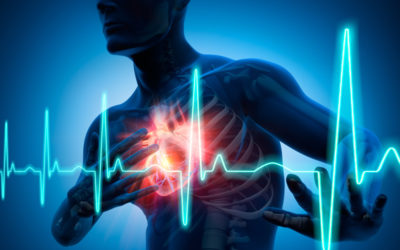 Que savez-vous de la crise cardiaque ?