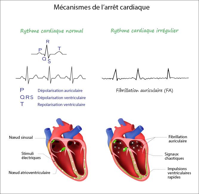 Mécanismes de l'arrêt cardiaque