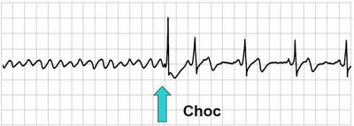 """Passage d'un état de fibrillation ventriculaire à un rythme normal après une défibrillation (""""choc"""")"""